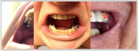 Photos of your dental situation